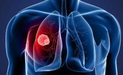 这五种饮食能预防肺癌