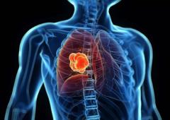 肺癌晚期延长生命的方法