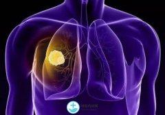 肺癌治疗中的不良反应要及时治疗